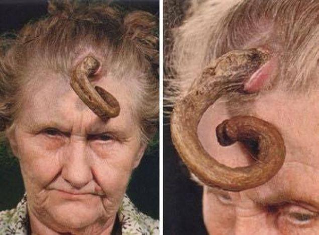 vindecă extracția paraziților ce medicamente pentru viermi?