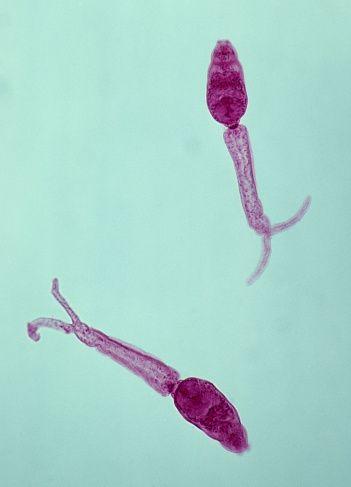 paraziți non microscopici