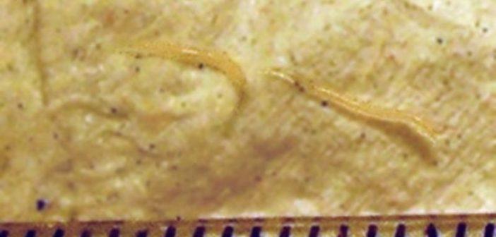 paraziti si tratament cu fibroame