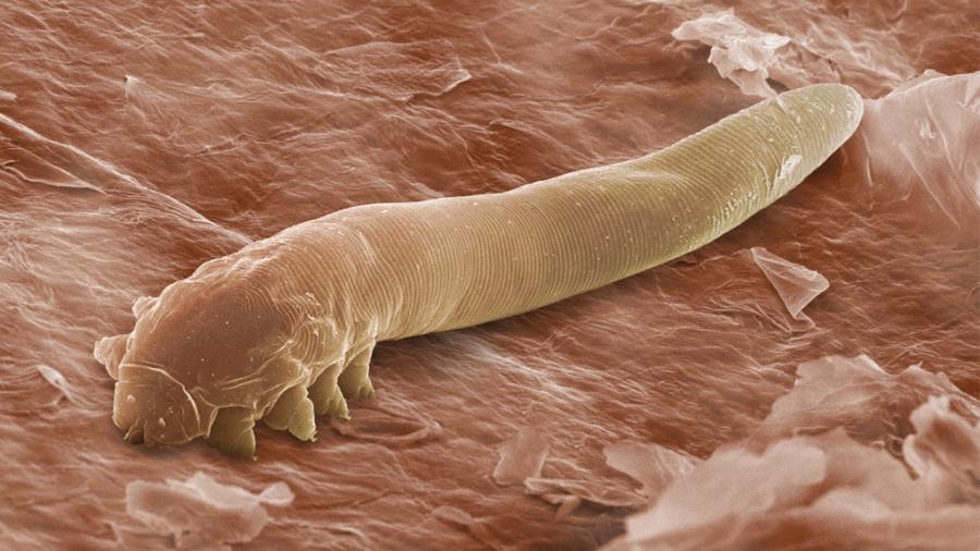 paraziti u nasem organizmu genital warts on tongue painful