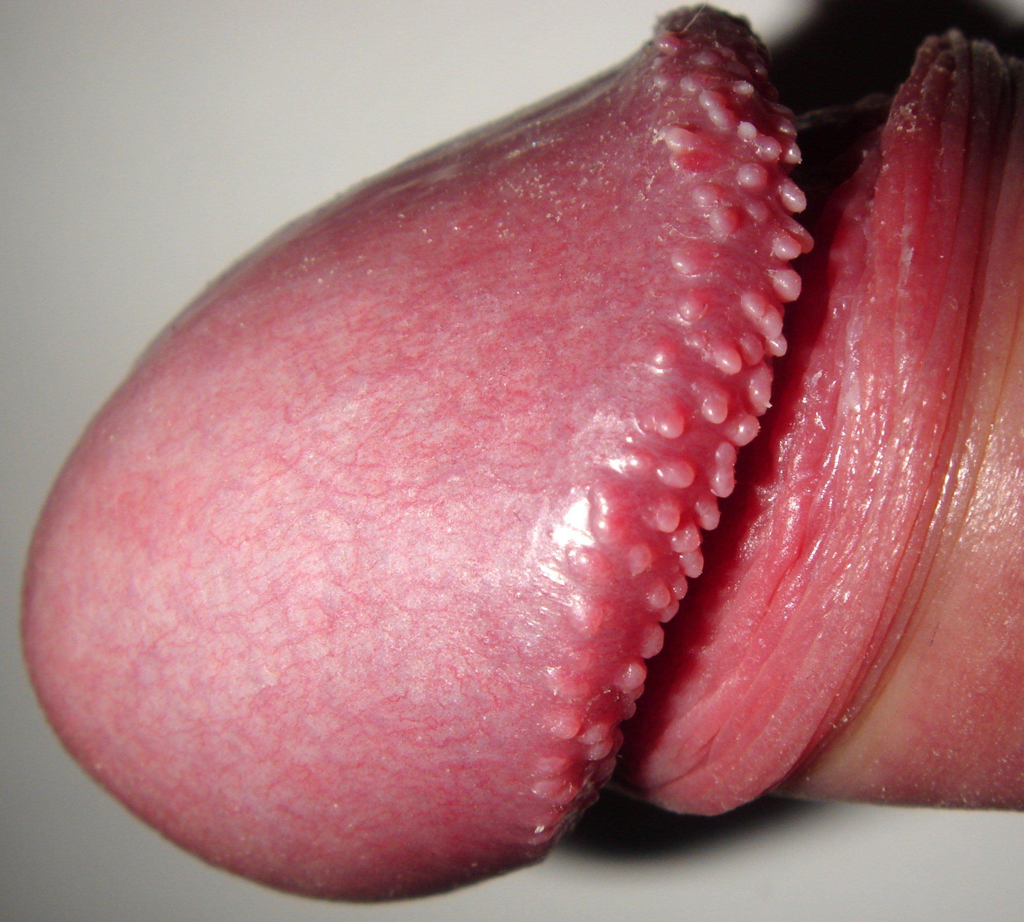 penile papilloma icd 10 cancerul colorectal sporadic