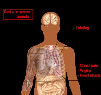 priznaky anemie z nedostatku zeleza