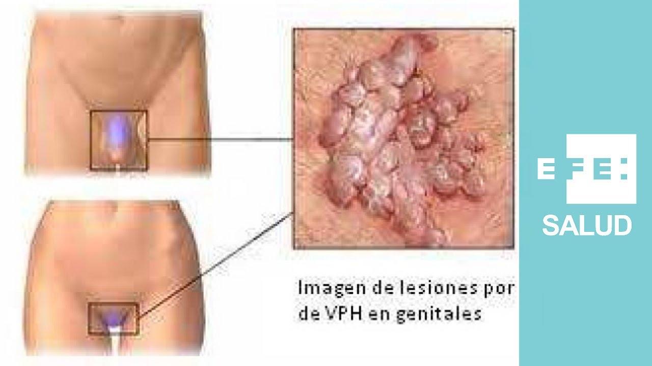 Virus del papiloma y sus sintomas., Que es la papiloma y sus sintomas