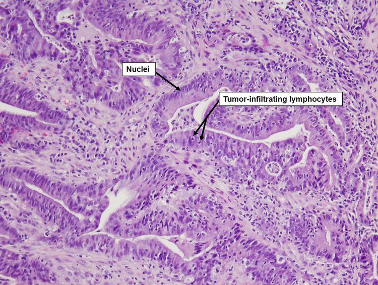 rectal cancer histopathology