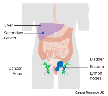 Rectal cancer lymph node metastasis.
