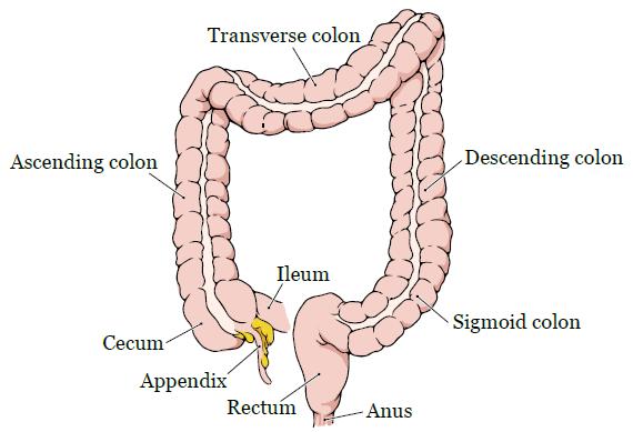 Portal de Pesquisa da BVS Rectosigmoid cancer prognosis