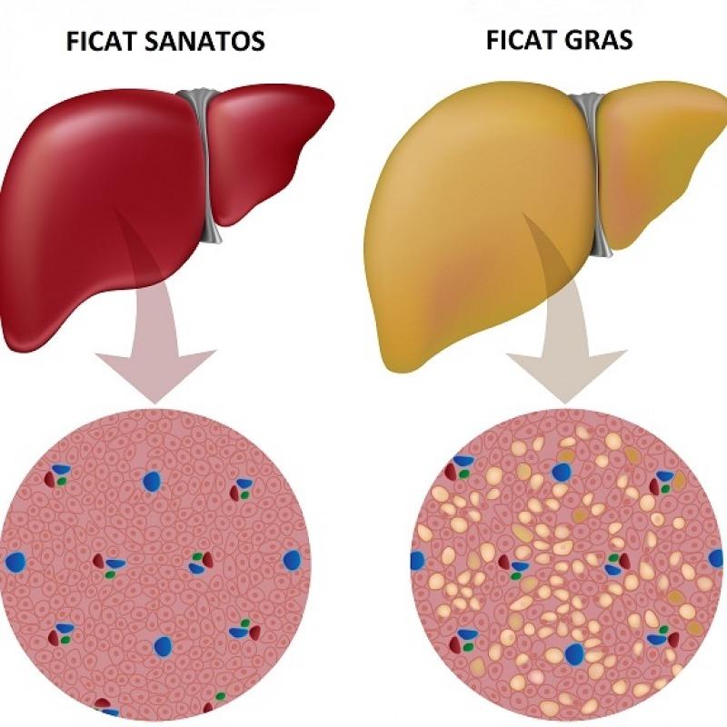 Ficatul gras (steatoza hepatica): cum il recunosti, cauze, simptome si tratament | Bioclinica