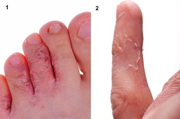 roseata intre degetele de la picioare hpv vaccine necessary