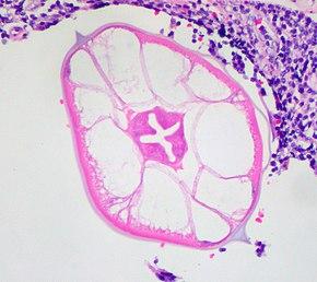 schimbare gazdă pinworms tenia urcă prin esofag