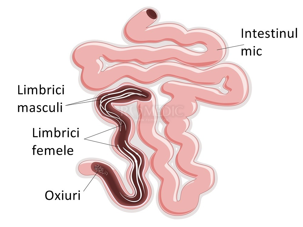 Paraziții intestinali la copii