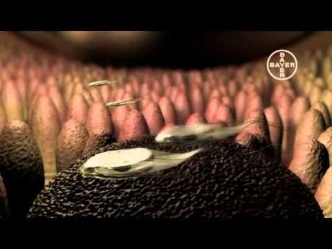 Giardia este bună la durere. Infectia cu giardia (giardioza)