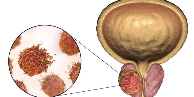 Cancerul de prostată: cauze, simptome și tratament - Intermedicas | Blog