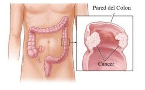 simptomele diareei giardiei papilloma growth rate
