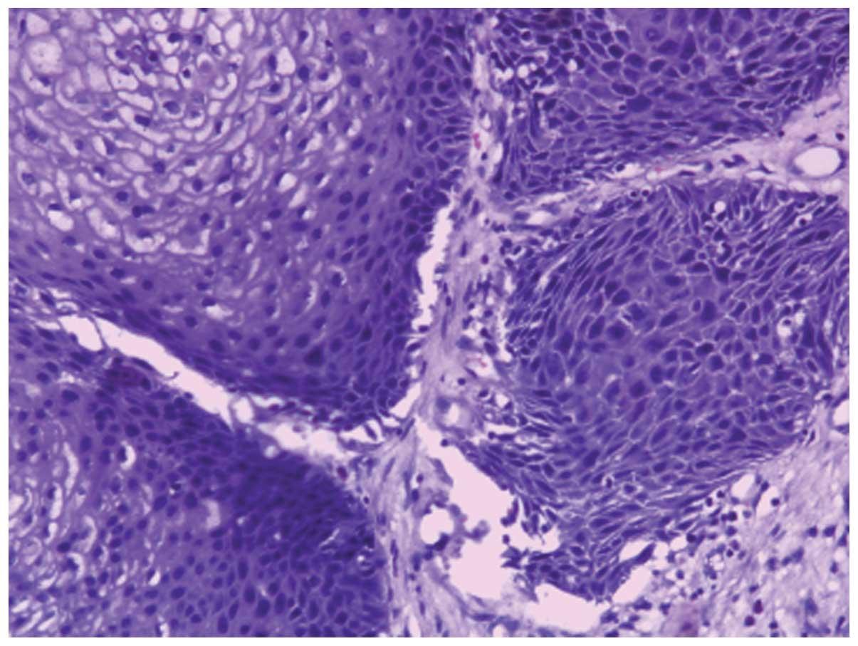Nasal vestibular papilloma - topvacanta.ro - Papilloma nasal cavity