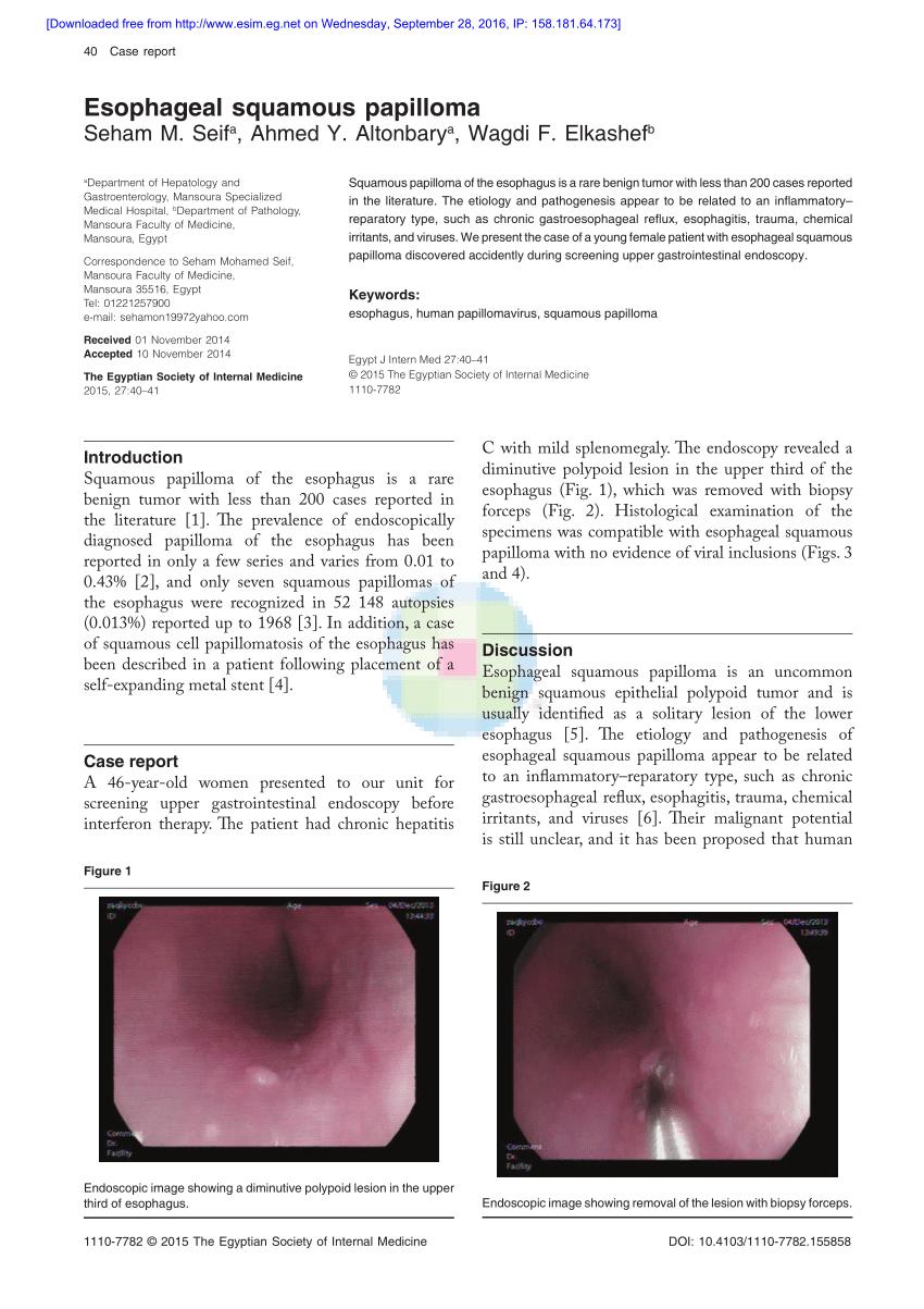 squamous papilloma etiology ce să iei intern din negi genitale