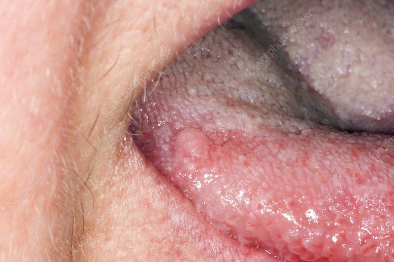 Squamous papilloma tongue
