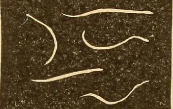 Tableta pinworm man pinworm. Enterobius vermicularis causes what disease
