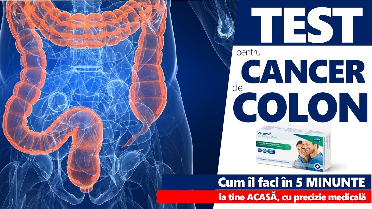 Cancerul de stomac – depistat adesea in stadii avansate | topvacanta.ro