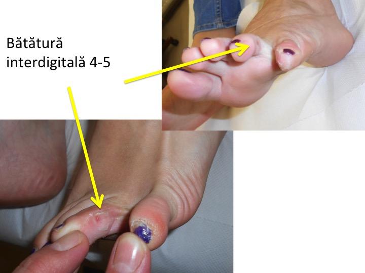 tratament naturist bataturi intre degete