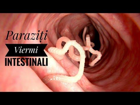 tratamente naturiste pentru viermi intestinali la pasari
