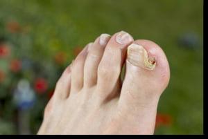 tratamentul unghiilor parazite