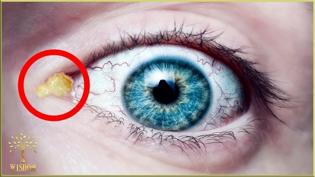 Ce viermi sunt în ochiul uman - Top citite acum