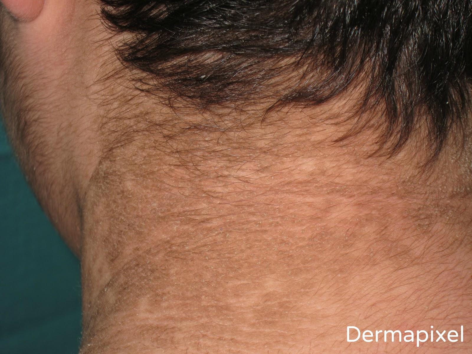tratamiento para papilomatosis confluente y reticulada ovarian cancer prevalence
