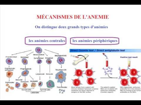 L anemie symptome, Traducere