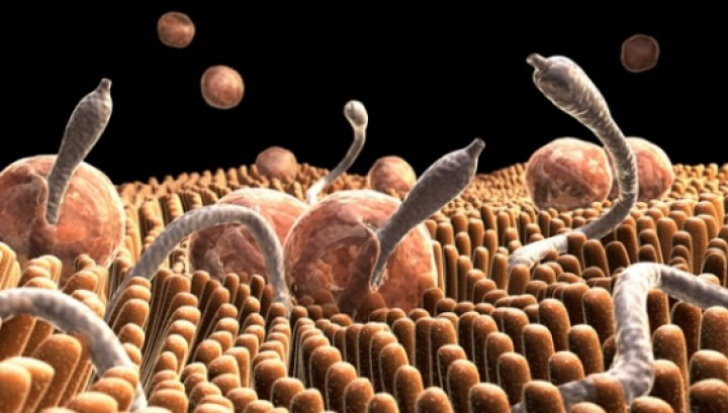 mild epidermal papillomatosis unguent pentru tratarea negi genitale