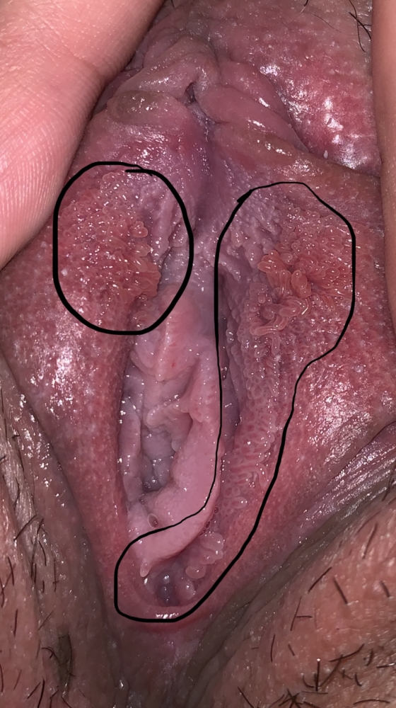vestibular papillomatosis medicine