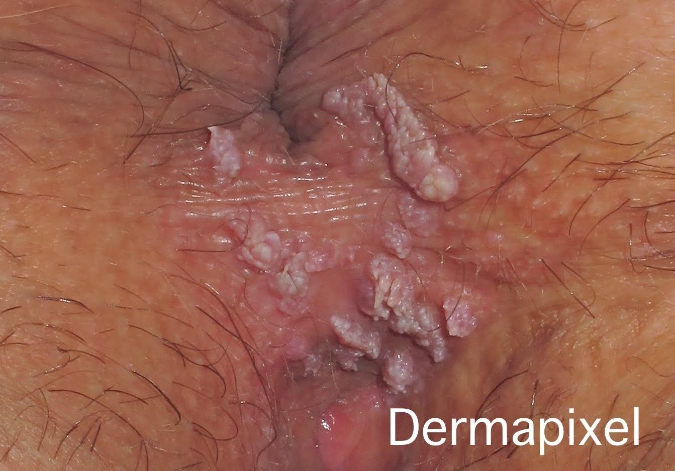 Papiloma humano labios genitales.