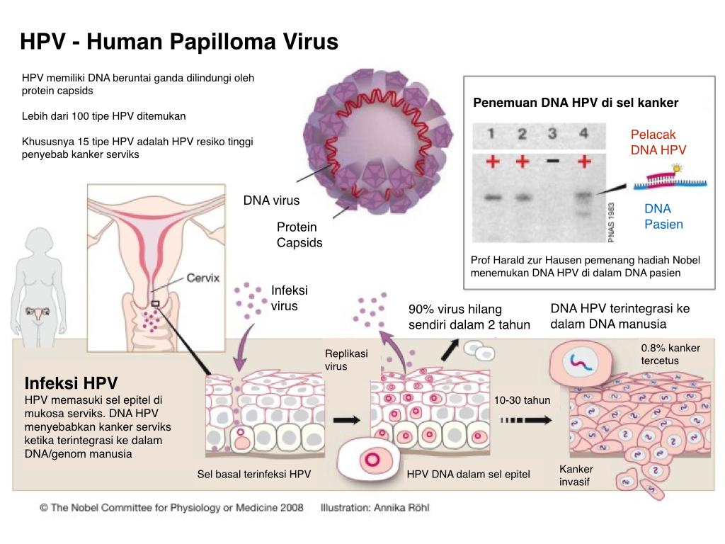 virus hpv yang menyebabkan kanker serviks