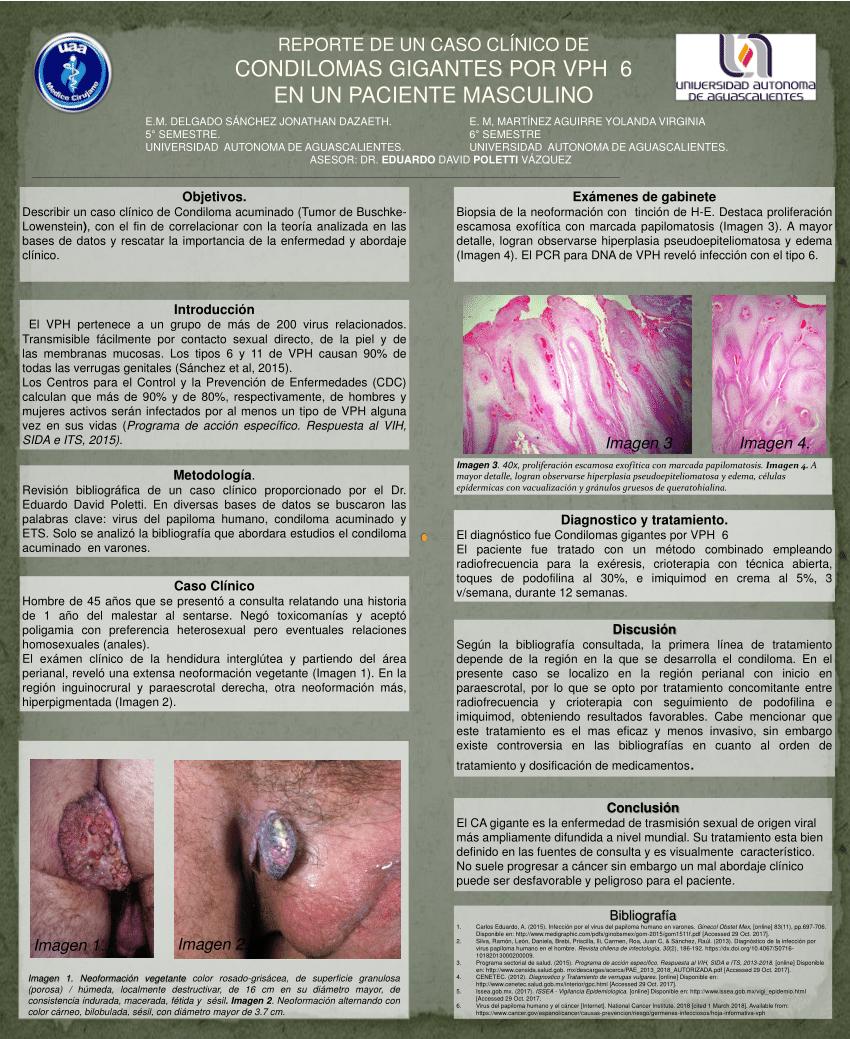Papiloma en ano, Verrugas en el borde anal (condilomas acuminados) detoxifiant foie pancreas