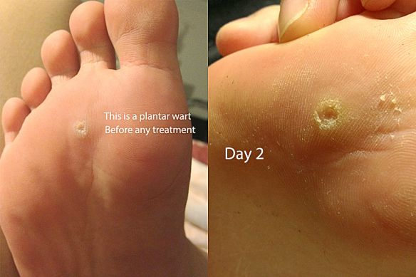 Warts on foot removal