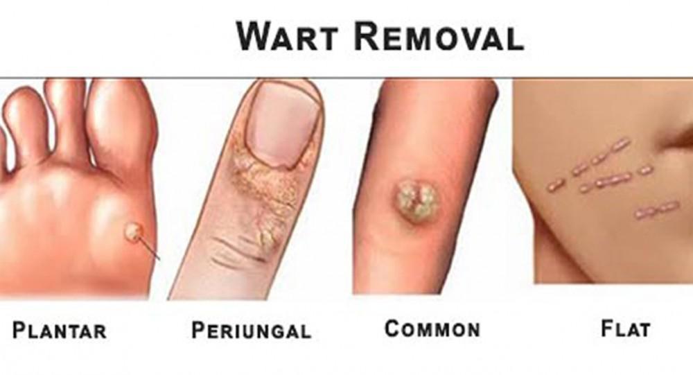 Wart on face skin cancer