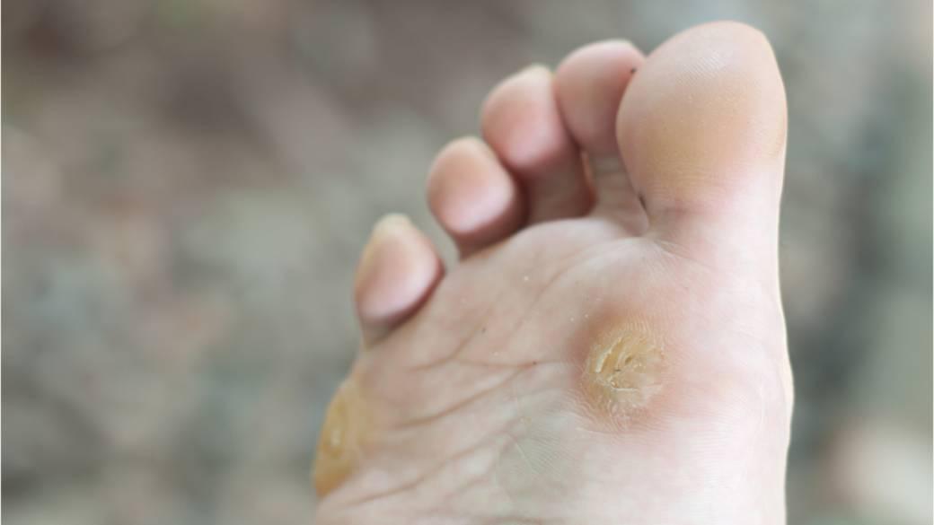 wart on foot starting to hurt