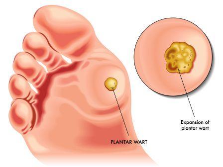 Wart treatment on nhs. Papilloma treatment nhs