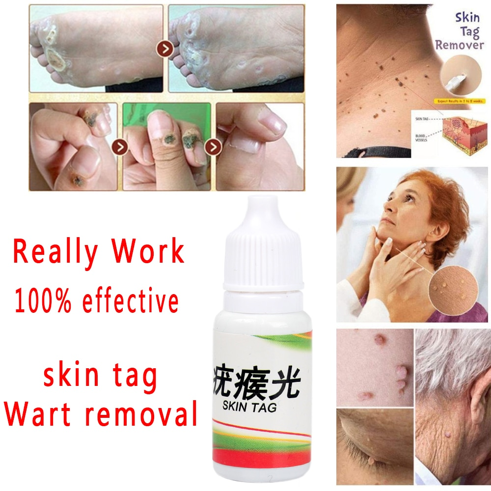 wart treatment cream numele viermilor