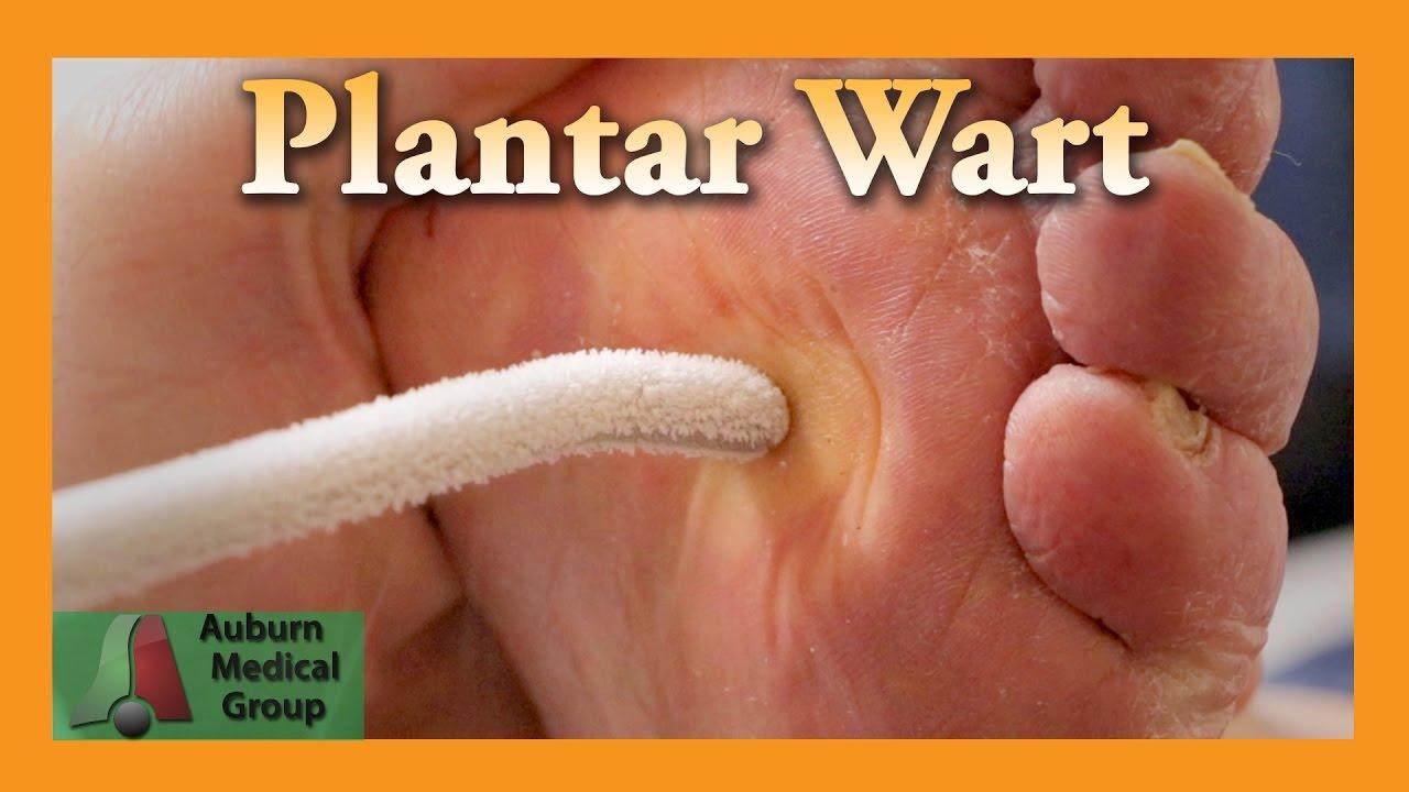 wart treatment of