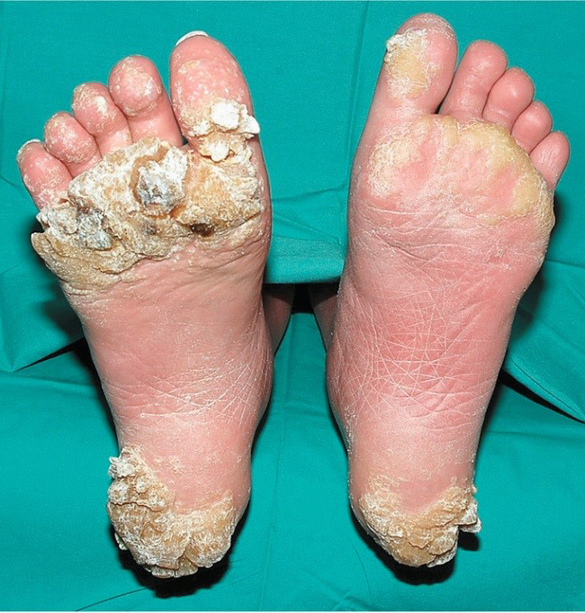 warts for foot