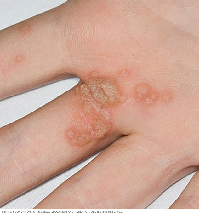 warts on hands virus