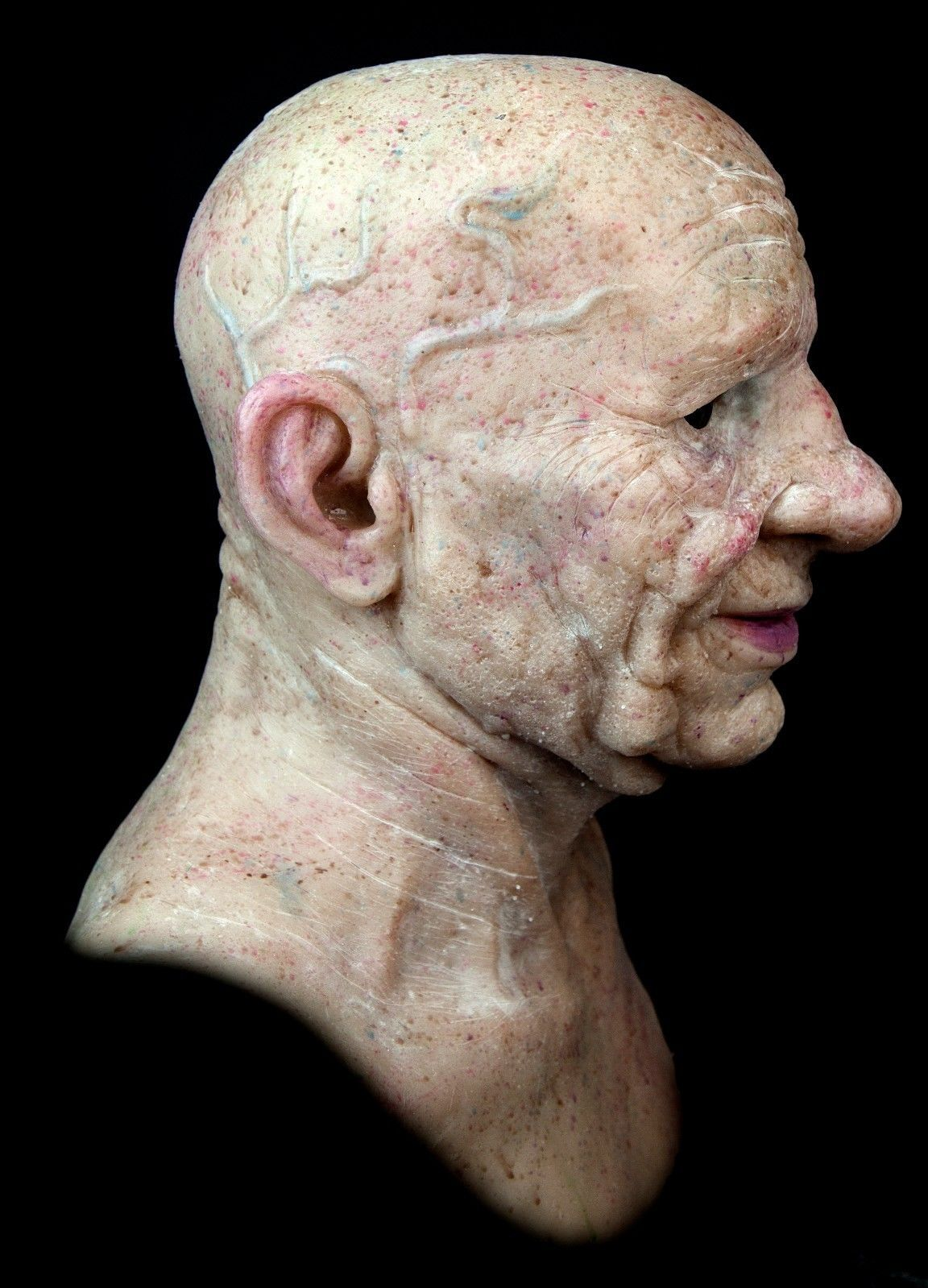 warts on old skin