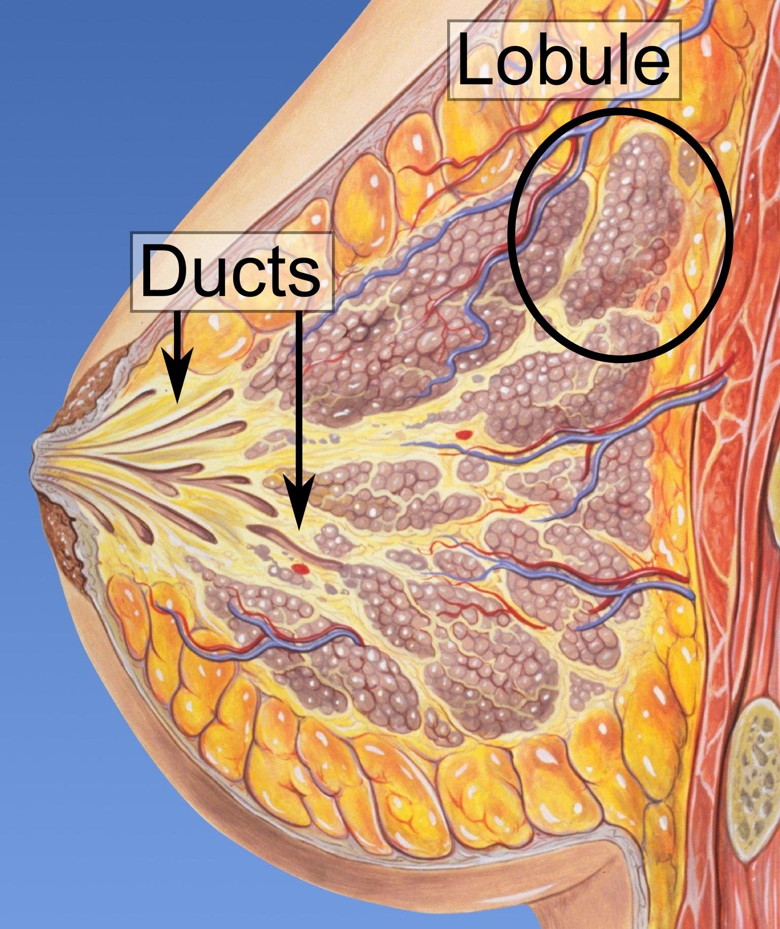 whats ductal papilloma intraductal papilloma ck5 6