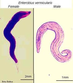 Wurmer enterobius vermicularis
