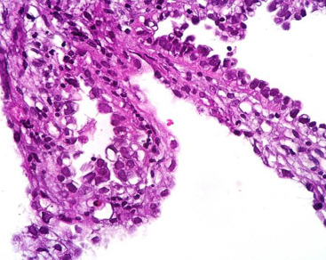 ovarian cancer xenograft model papilomele au apărut pe corp cum să se trateze