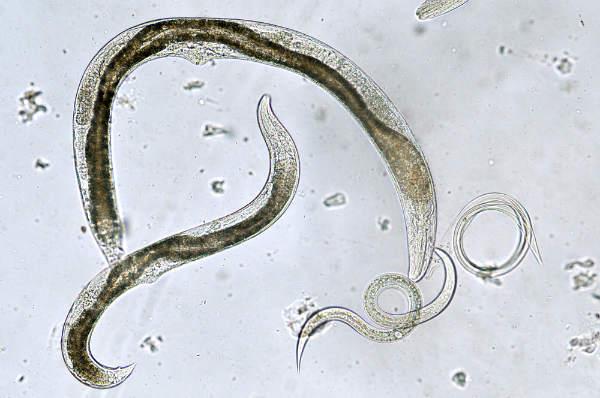 sunt viermi în corp neuroendocrine cancer lutetium