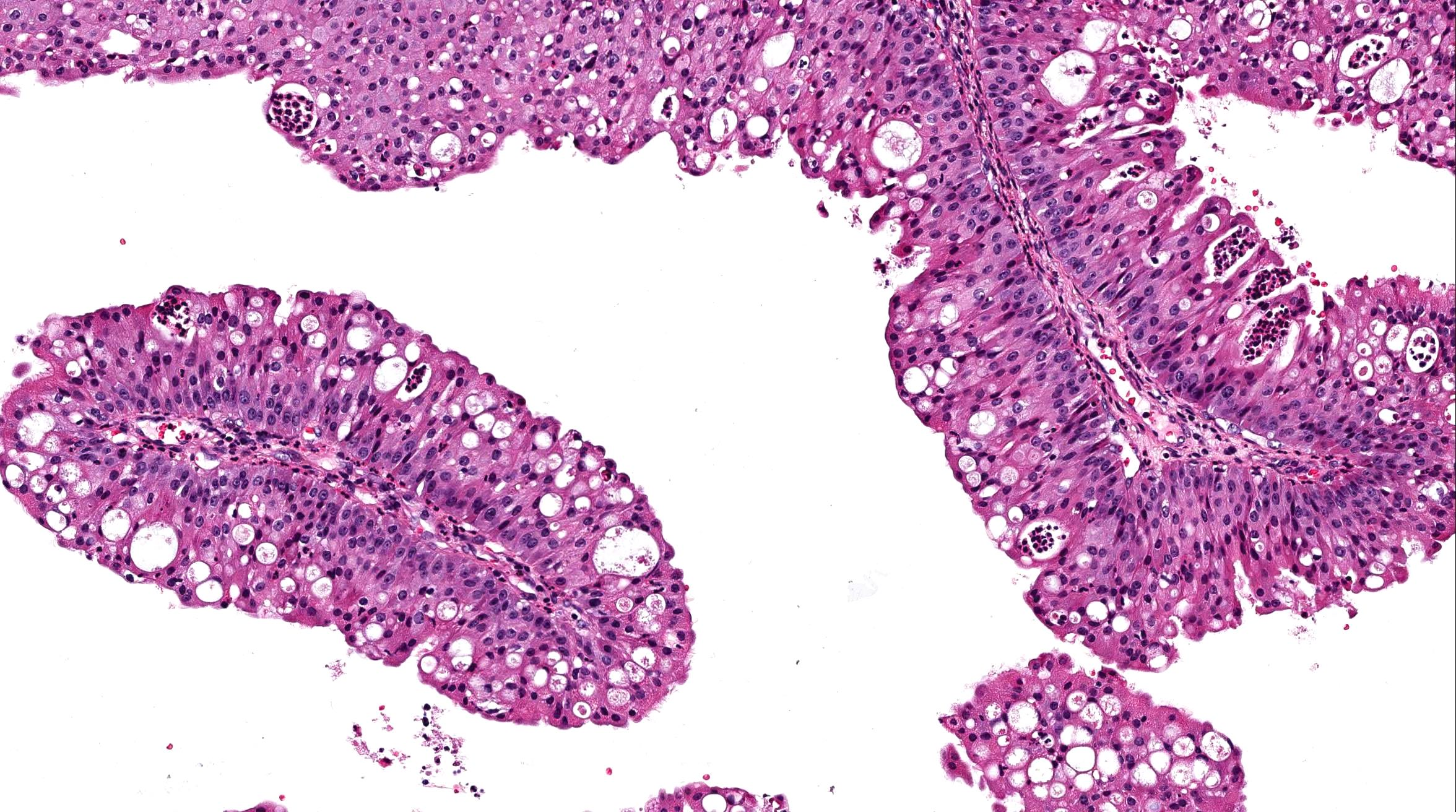 urothelial papilloma pathology outlines