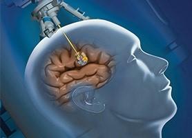 simptome cancer cap curățarea corpului cu o clismă de paraziți