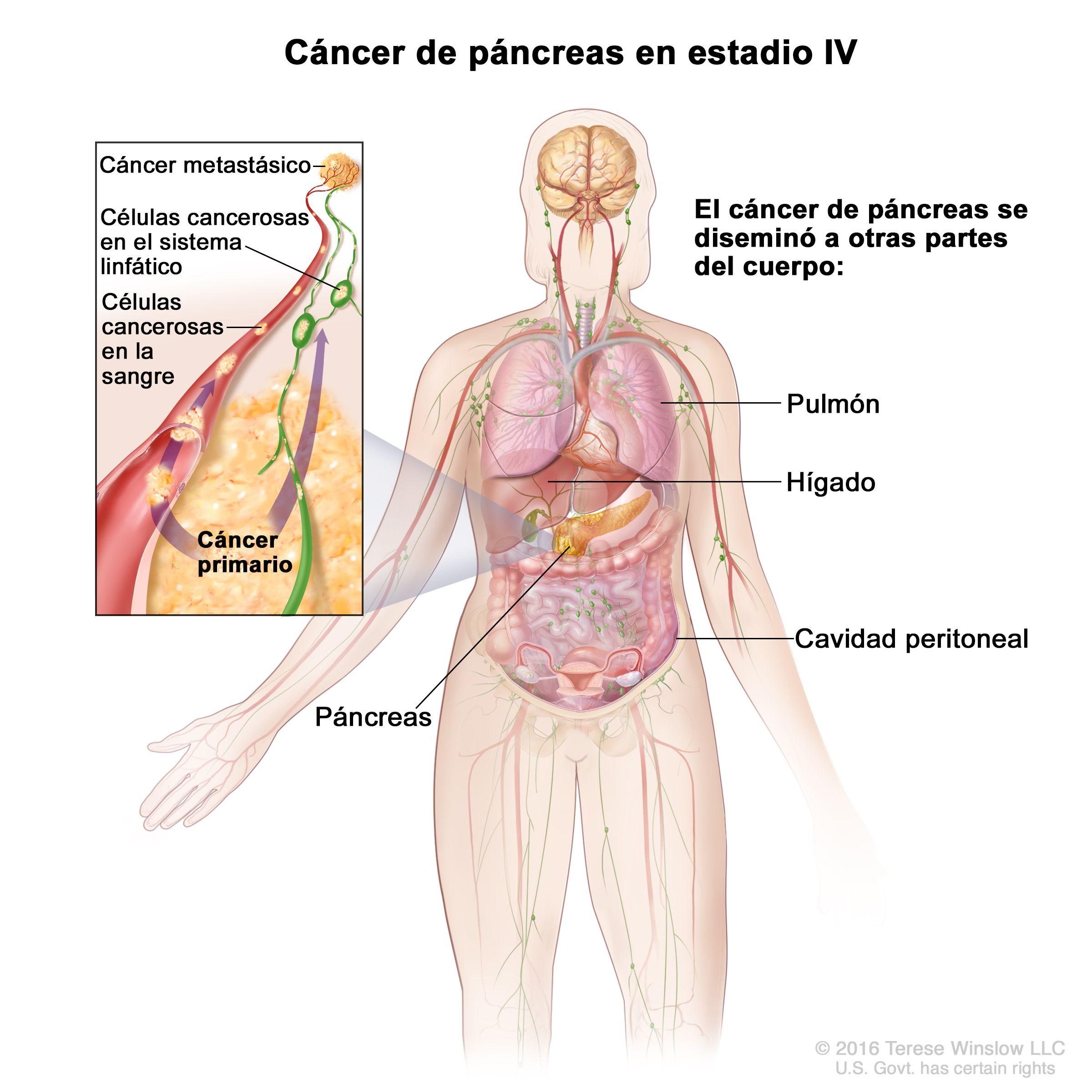 cancer peritoneal avanzado tiempo de vida