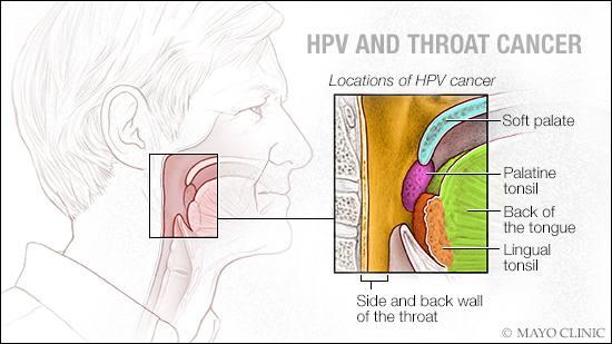 hpv cancer male symptoms medicina vierme este numele uman
